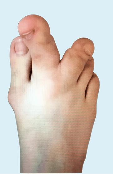 Proteus syndrom