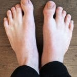 Trennung zusammengewachsener Zehen