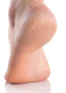 Hornhaut an der Fußsohle - Rauhe Füße