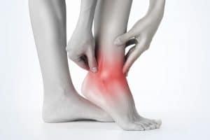 Gelenkverschleiß bei Gicht im Fuß