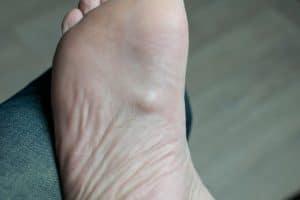 Morbus Ledderhose am Fuß