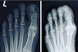 Hallux Rigidus x-ray